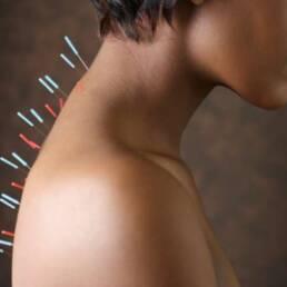 معجزه طب سوزنی Miracle Acupuncture