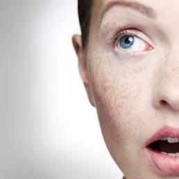 درمان آکنه با طب سوزنی Acne treatment with acupuncture