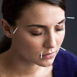 درمان اضطراب با طب سوزنی Treatment of anxiety with acupuncture