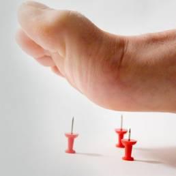 درمان نوروپاتی دیابتی با طب سوزنی Diabetic neuropathy