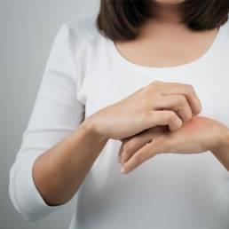 تاثیر طب سوزنی بر اگزما Eczema