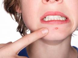 جوش های صورت acne acupuncture treatment