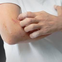 از بین بردن کهیر با طب سوزنی Hives