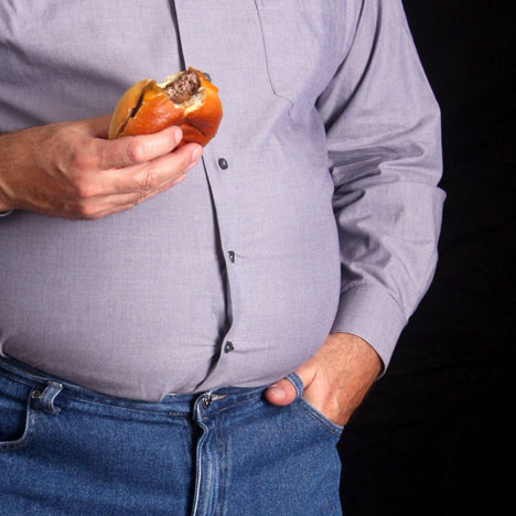 Obesity درمان چاقی با طب سوزنی