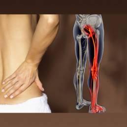 درمان سیاتیک با طب سوزنی Sciatica