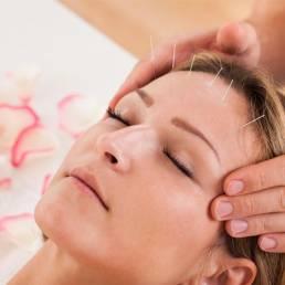 جوانسازی صورت با طب سوزنی skin rejuvention