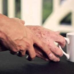 درمان ترمور یا لرزش با طب سوزنی رTremor or vibration treatment with acupuncture