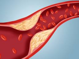Cholesterol reduction with acupuncture کاهش کلسترول با طب سوزنی