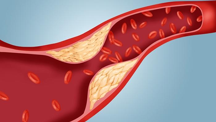طب سوزنی کلسترول خون را پایین می آورد