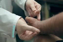 acupuncture طب سوزنی