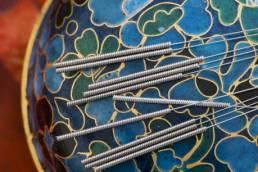 عوارض طب سوزنی acupuncture side effects