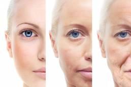 Slow down the aging process کاهش سرعت روند پیری با طب سوزنی