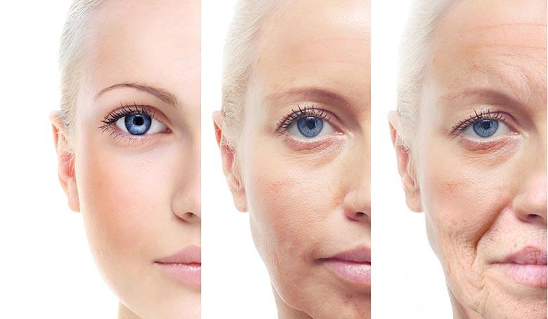 چگونه کاشت نخ، روند پیری پوست را متوقف می کند؟