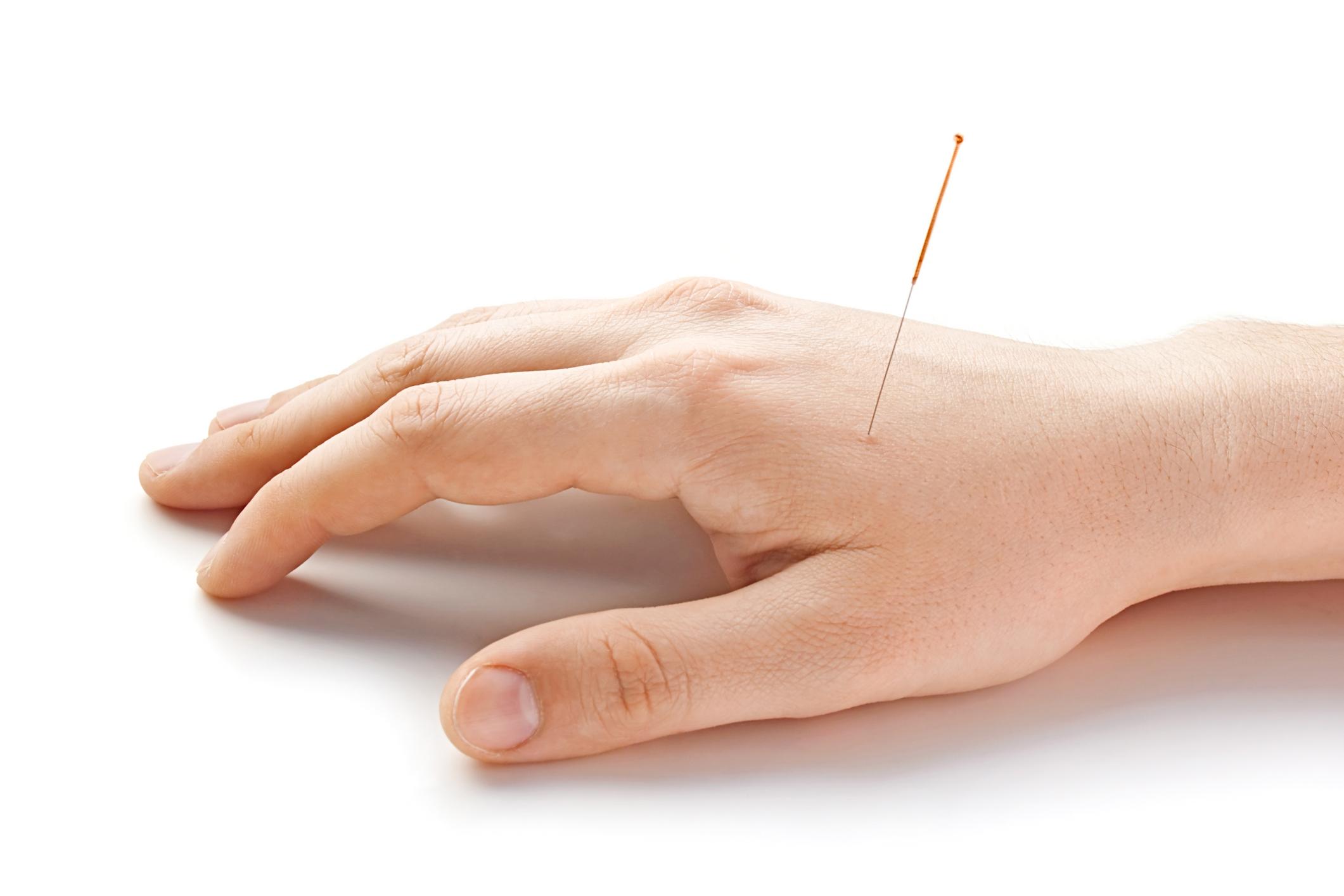 روشی نوین در طب سوزنی: طب سوزنی ایمپلنت