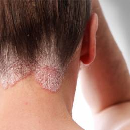 درمان پسوریازیس با طب سوزنی posriasis