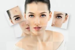 facial rejuvenation جوانسازی پوست صورت