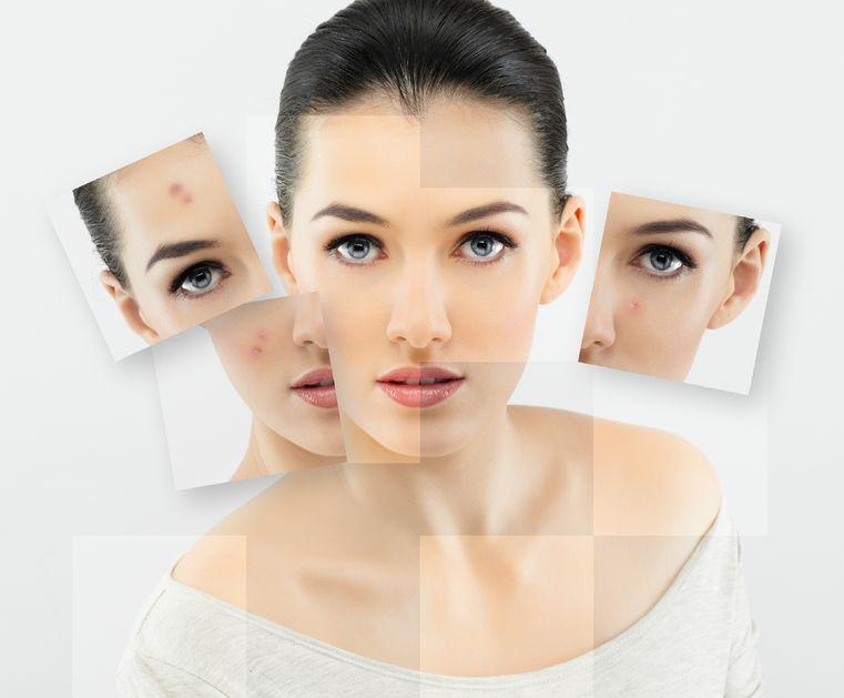 اثرات طب سوزنی در جوانسازی پوست صورت