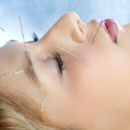 Acupuncture in the Treatment of Depression طب سوزنی در درمان افسردگی