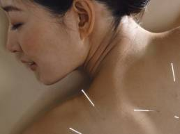 طب سوزنی فشار درمانی Acupuncture vs Acupressure