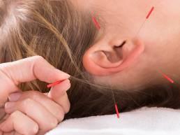 ایمپلنت گوش طب سوزنی Hand Performing Acupuncture Therapy On Auricle