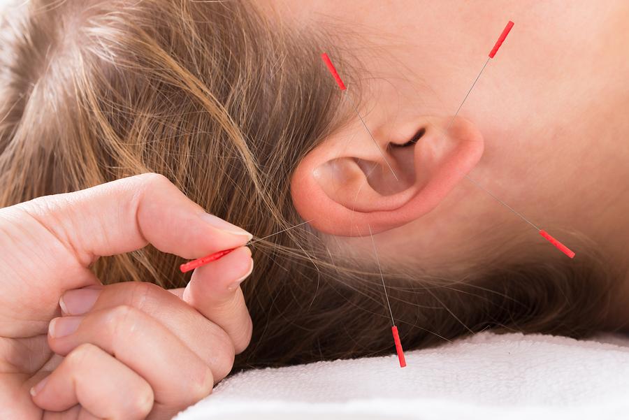 تفاوت ایمپلنت گوش یا ایمپلنت آکوپانکچر با طب سوزنی مرسوم