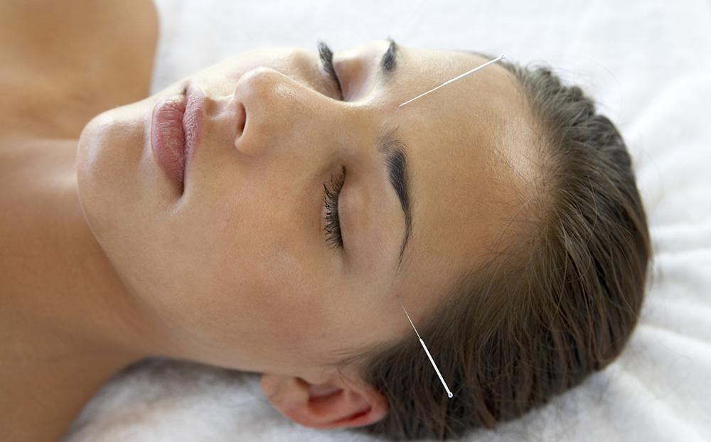 درمان جوش صورت با طب سوزنی