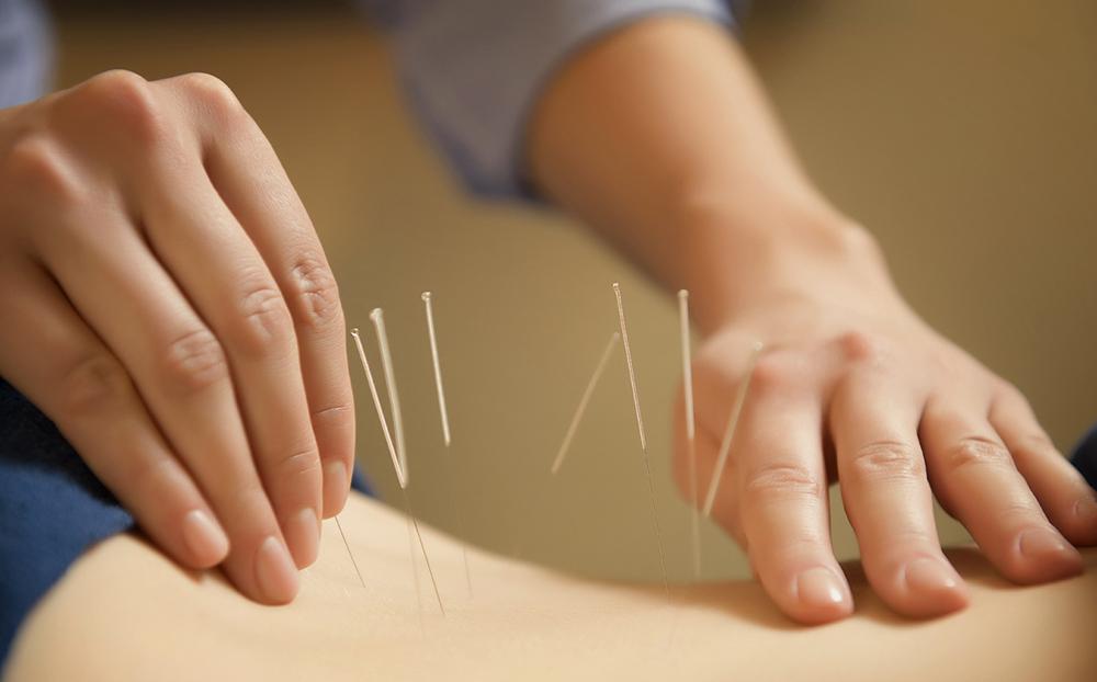 تاثیر طب سوزنی در درمان کمر درد