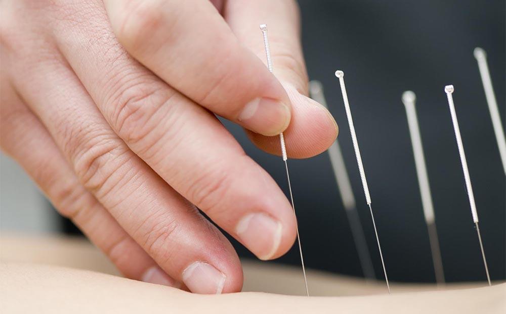 کم دردسرترین درمان فیبروم رحم با طب سوزنی