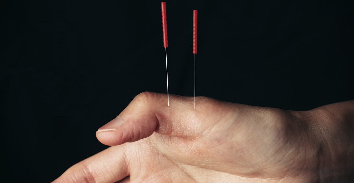 Acupuncture for hand & wrist pain in athletes