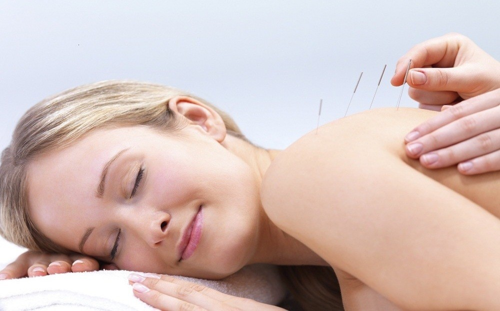 Treatment of infertility by acupuncture