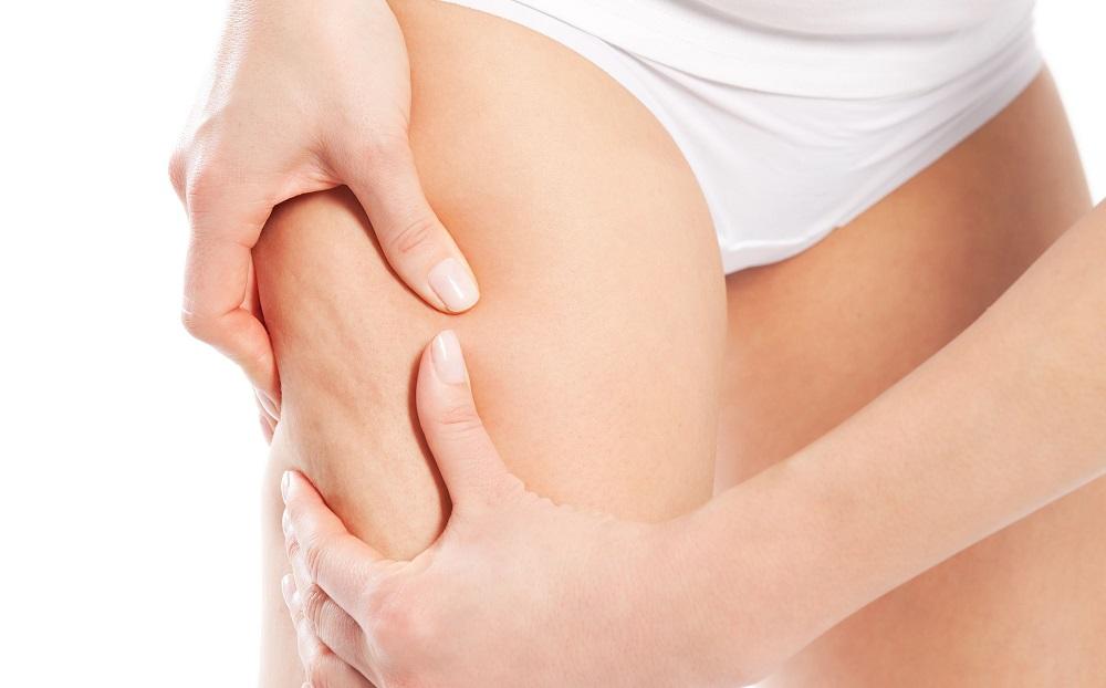 آیا درمانی برای از بین بردن سلولیت وجود دارد؟