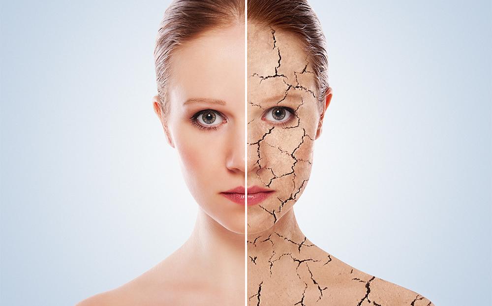 آیا خشکی پوست درمان دائمی دارد؟