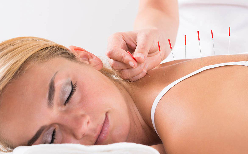 Can Acupuncture Help Relieve Cancer Pain and Other Side Effects?