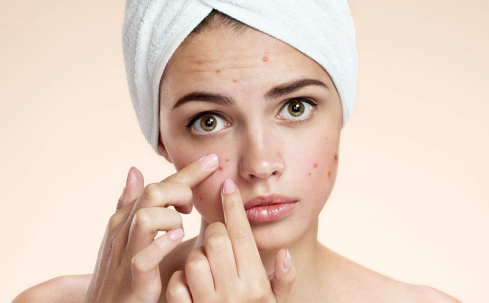 Acne scar treatment with acupuncture
