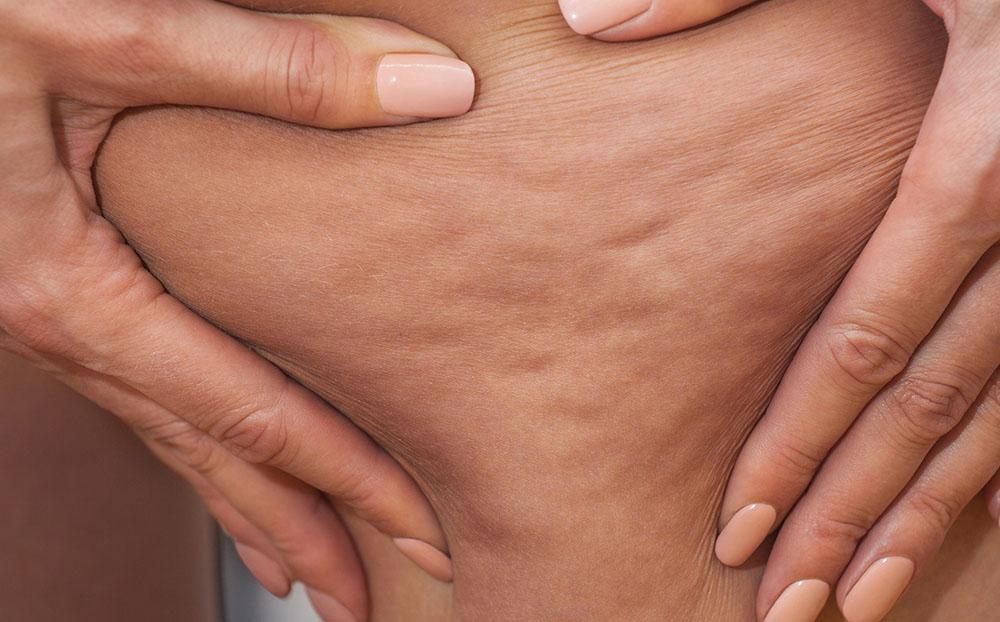درمان سلولیت با روشهای طبیعی