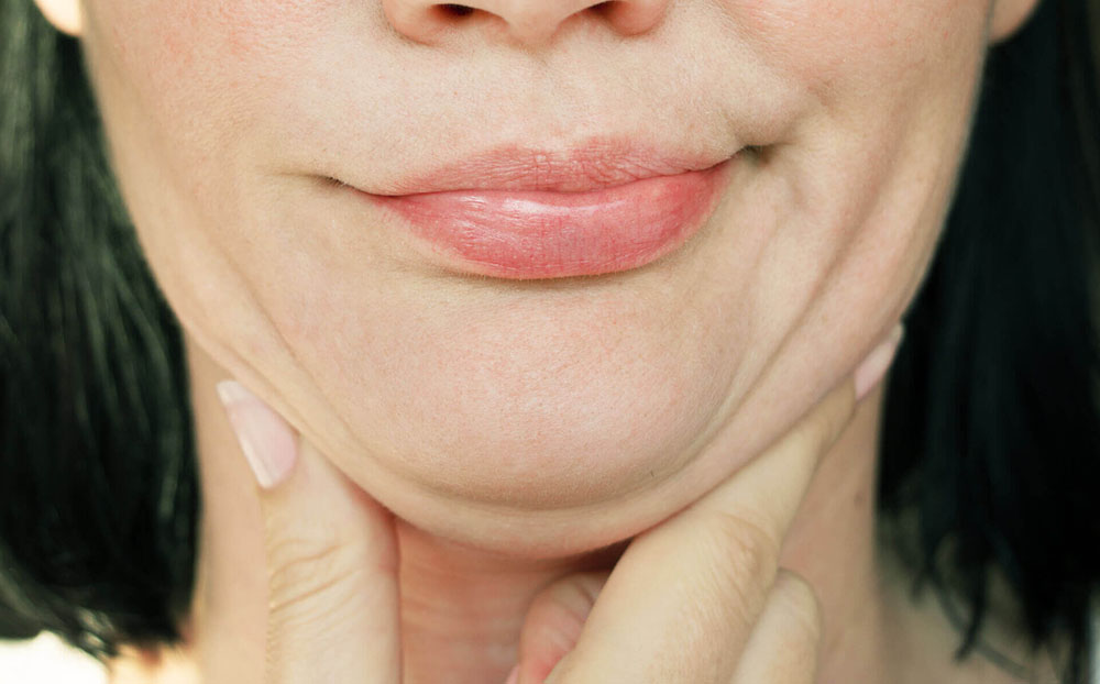 Acupuncture for double chin