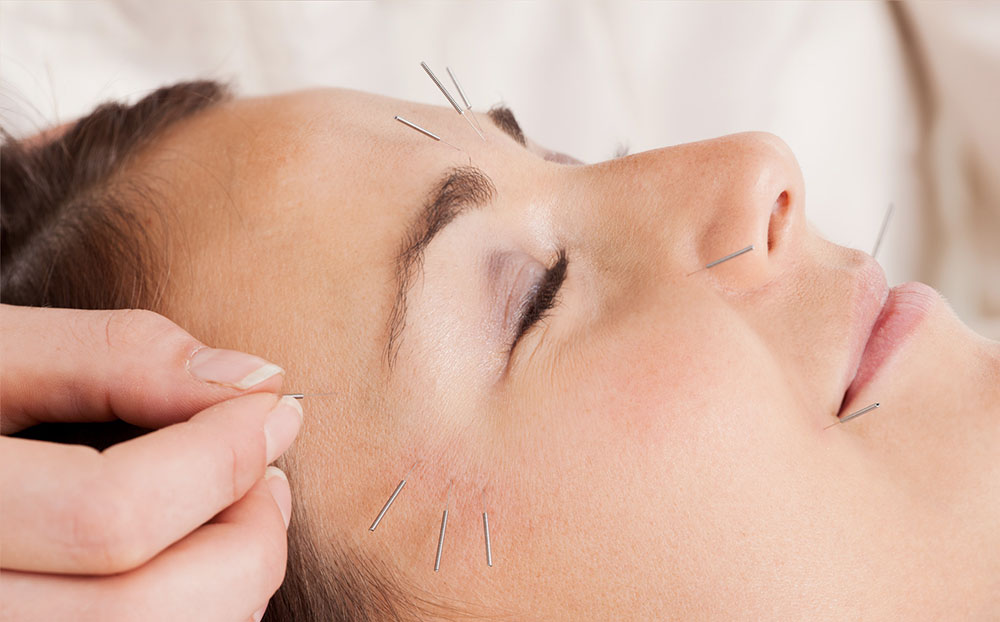 درمان افتادگی پوست صورت با طب سوزنی
