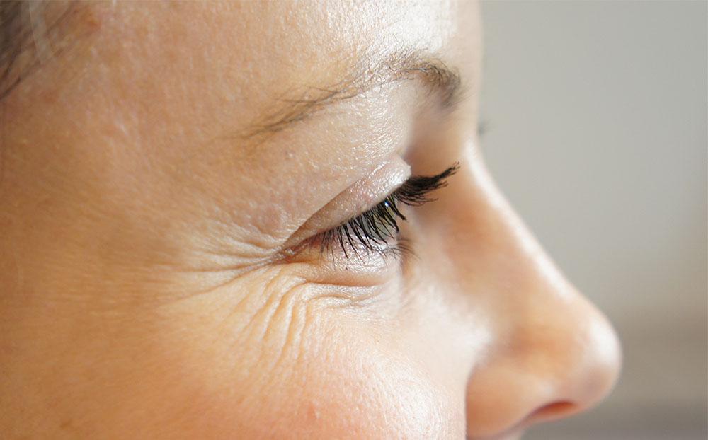 چروک دور چشم به چه دلایلی ایجاد میشود؟