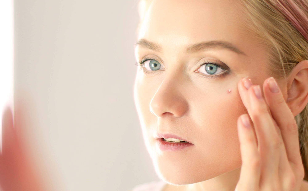 Types of Acne and How to Treat Them
