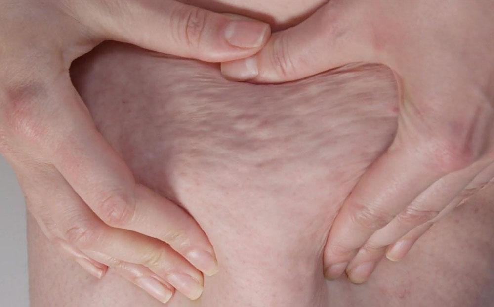 سلولیت به چه دلایلی ایجاد میشود و چگونه میتوان از ایجاد آن جلوگیری کرد و یا آنها را از بین برد؟