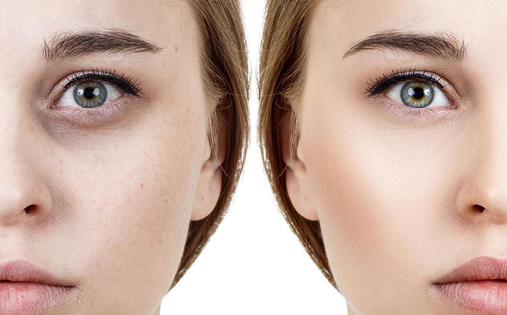راههای زیادی برای از بین بردن سیاهی دور چشم وجود دارد،  شما کدام راه را انتخاب میکنید؟