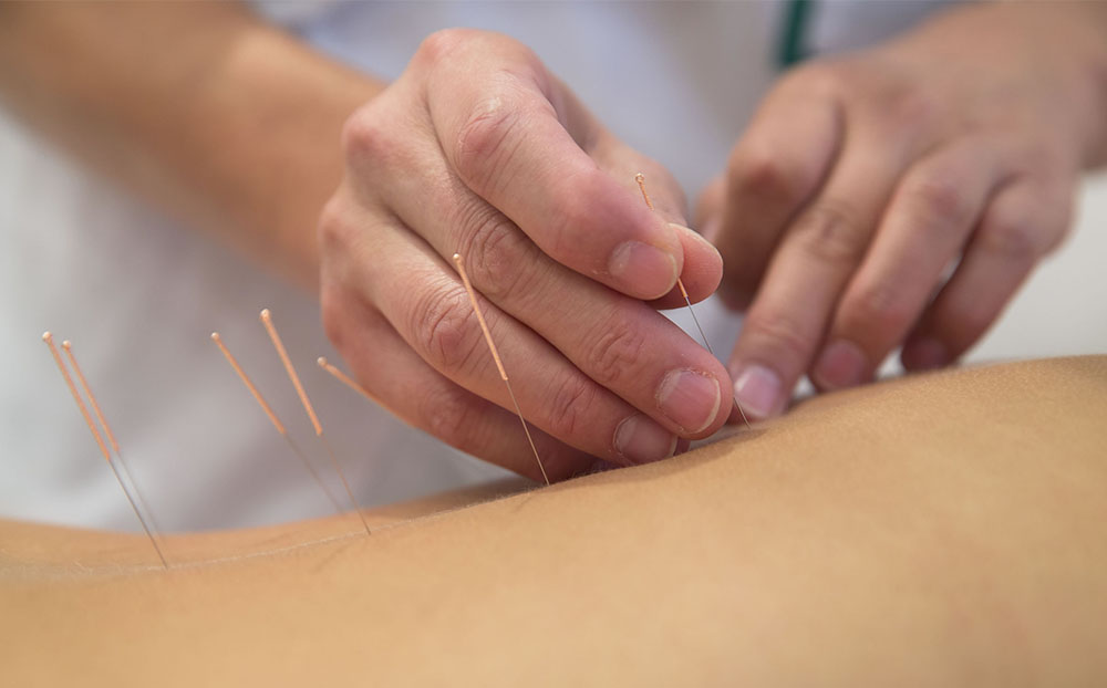acupuncture for local fats