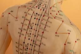 نقاط سوزن گذاری طب سوزنی بر چه اساس و چگونه انتخاب می شوند؟