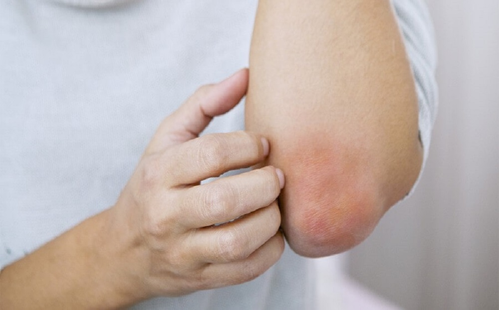 با طب سوزنی اگزما را درمان کنید