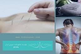 طب سوزنی برای درمان دیسک کمر چه می کند؟