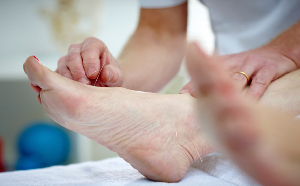 Acupuncture for treating diabetic tingling feet