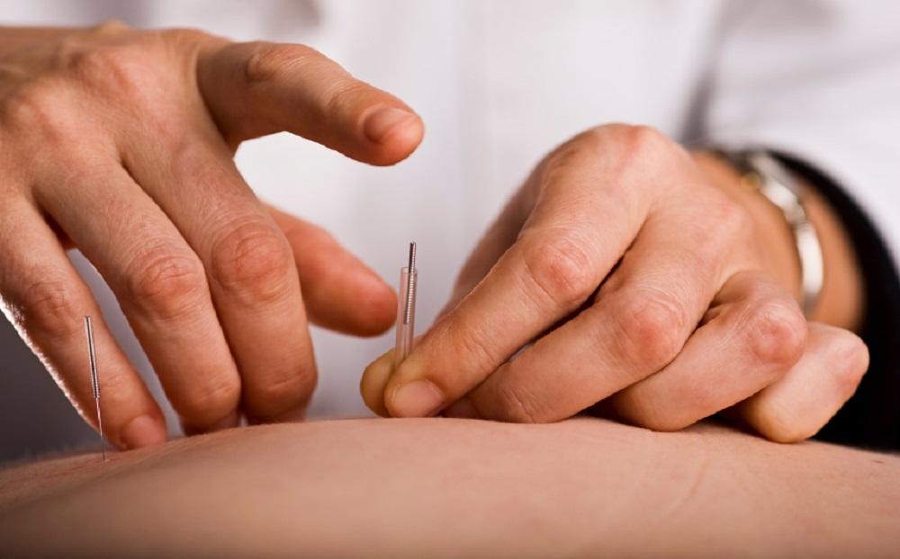 طب سوزنی لیزری، الکتریکی و سنتی چه تفاوت هایی دارند؟
