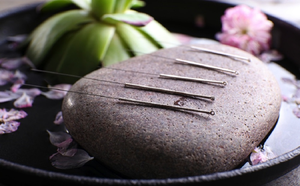 why do celebrities use acupuncture?
