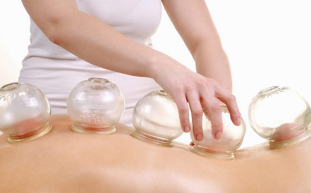 effects of cupping therapy