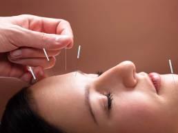 delay the aging process of brain cells with acupuncture|با طب سوزنی روند پیر شدن سلولهای مغز را به تعویق